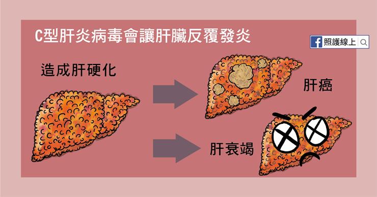 C型肝炎會造成肝硬化、肝衰竭、肝癌