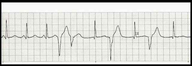 Float Nurse: EKG Rhythm Strip Quiz 205