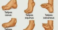 foot talk Club Foot Talipes the Holy Foot