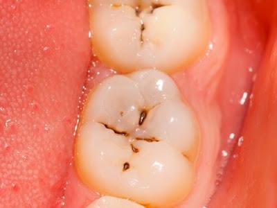 Chữa sâu răng bằng cách nào ?