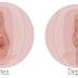 O que é a perineoplastia?