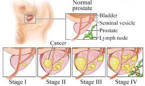 มะเร็งต่อมลูกหมาก อาการ