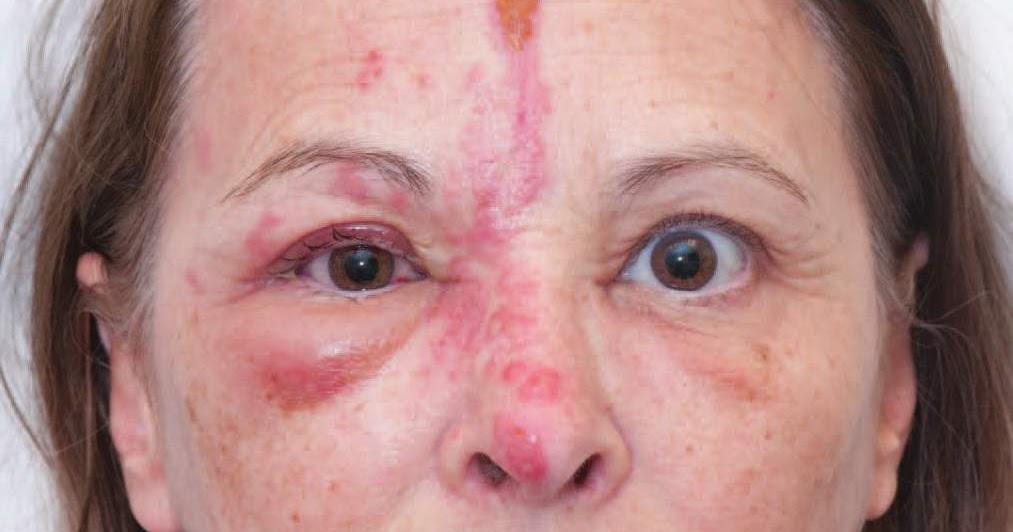 herpes simplex keratitis steroids