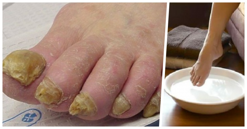 Удаление грибка ногтей уксусом