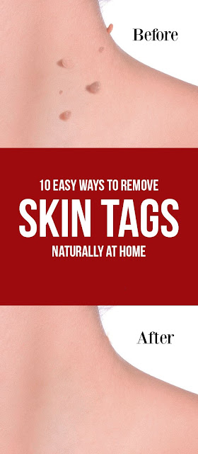 How to Remove Skin Tags Naturally at Home?