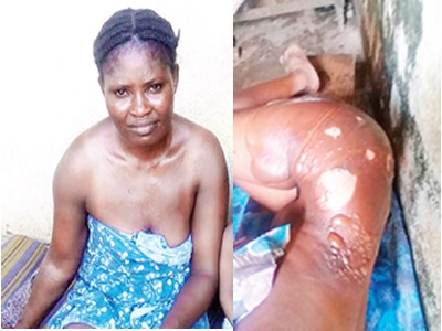 Jealous Wife Pours Hot Water On Female Neighbour For Greeting Her Husband