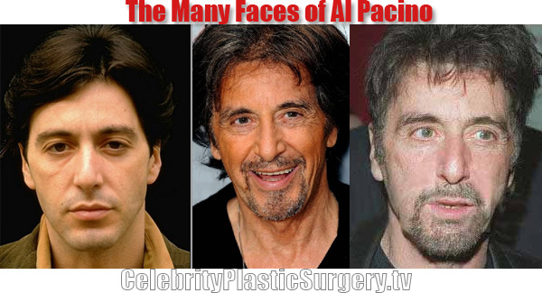 Al Pacino Plastic Surgery Before And After Botox