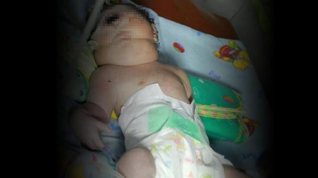Bayi Bermata Satu Lahir di Mandailing Natal, Diduga Ini Penyebabnya!