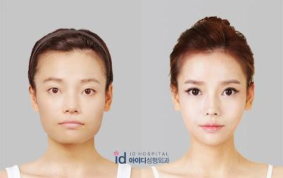 v+line+surgery%252C+facial+contouring+surery+korea.jpg