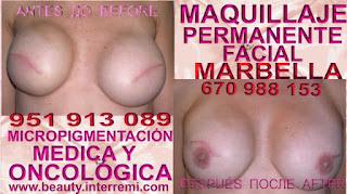 Reconstrucción de la areola mamaria Tratamiento cicatrices mamaria posteriormente de mastectomia
