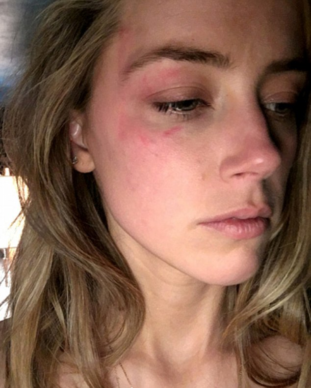 Amber Heard claims domestic abuse against Johnny Depp