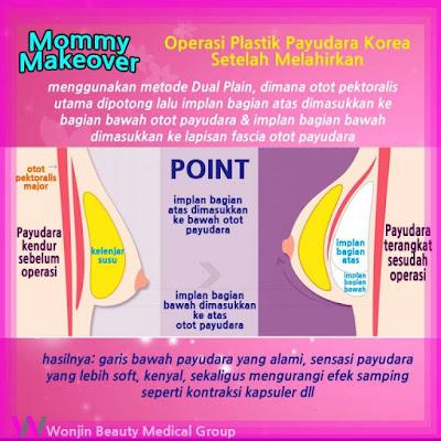operasi plastik payudara setelah melahirkan