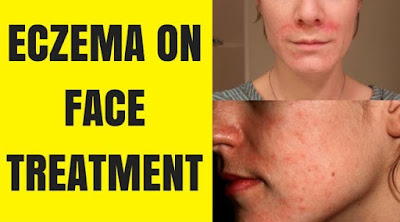 5 Ways to Treatmen Eczema on a Medically Recommended for Face