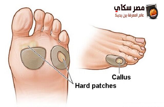 الكالو وأسبابة وطرق العلاج بالصور callus