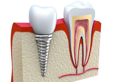 có nên cắm ghép răng implant không -15