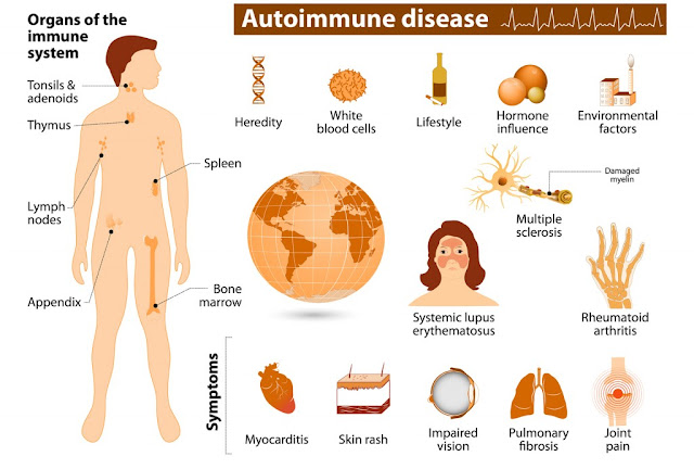 auto immune diseases treatment specialist in chennai tamil nadu