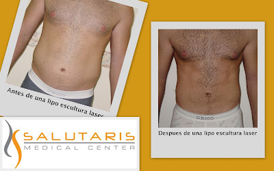 Antes y Despues de un marcaje abdominal con lipolaser en abdomen en hombre en Guadalajara Mexico