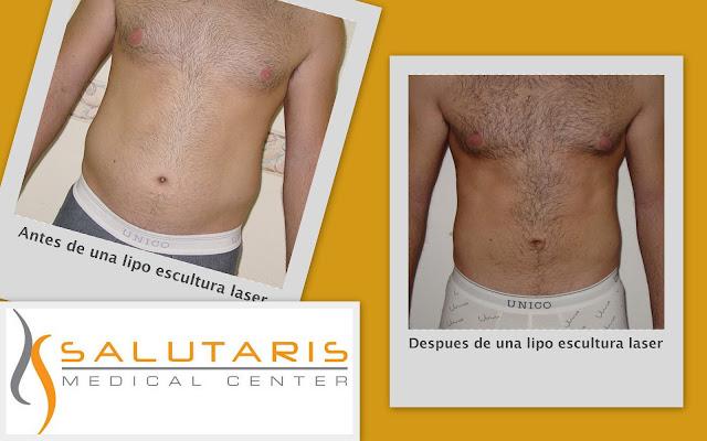 Lipo laser en hombres abdomenfotos antes y despues en Guadalajara Mexico