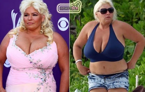 Beth Chapman Plastic Surgery Tummy Tuck Before And After