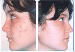 antes y despues de la crema para acne