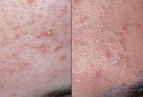Sunshineandhealthcare Common Adult Skin Problems