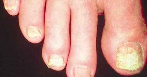 Nail Repair: Vertical Split Nail Repair
