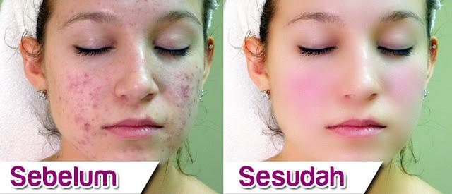 Cara Menghaluskan Wajah Berjerawat dengan Photoshop, menghaluskan kulit muka dengan photoshop, membersihkan muka dengan photoshop, cara mudah mengedit kulit wajah dengan photoshop, cara menghaluskan kulit wajah berjerawat di photoshop.