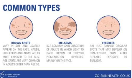 http://shop.zoskinhealth.com/blog/tag/pigmentation/