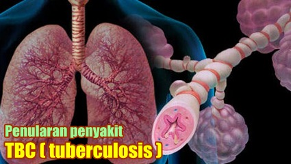 Apakah Tbc Menular Melalui Ciuman