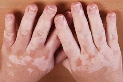 Gejala Penyebab dan Cara Mengobati Vitiligo