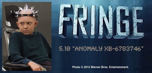 Fringe 5.10 Anomaly XB-6783746 / Photo of Spencer List as Michael hooked up to apparatus
