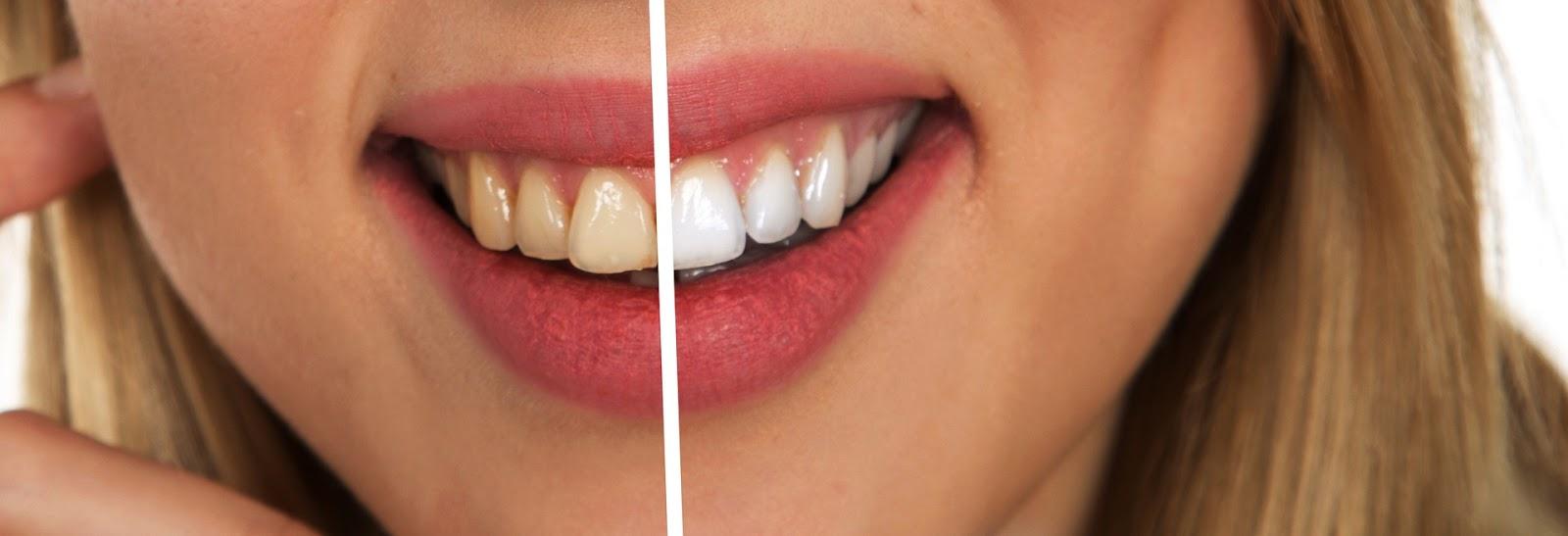 5 Cara Memutihkan Gigi Secara Sehat Baik dan Alami dengan Cepat