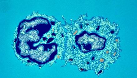 Célula T asesina: destrucción de células infectadas