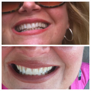 Crest 3d White 2 Hour Express Whitener After It Works