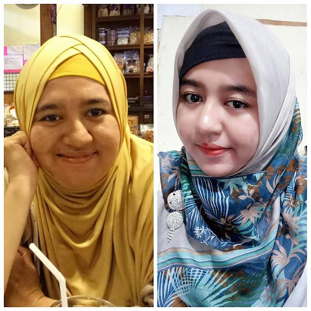 Menghilangkan Jerawat Cepat: Blog Kesehatan No. 1 Di Indonesia