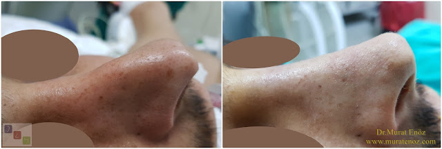 Treatment of Pollybeak Deformity - Cartilage Pollybeak Deformity - Cartilaginous Pollybeak Deformity - Tertiary Revision Rhinoplasty For Pollybeak Deformity  - Tertiary Revision Nose Job For For Pollybeak Deformity