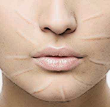 arruga causa, arruga cara, arruga origen