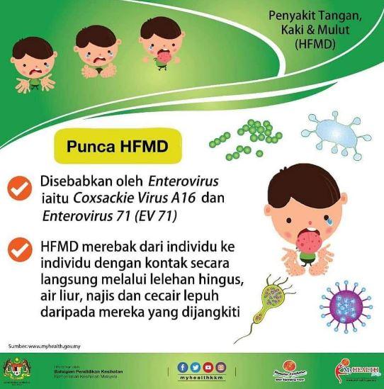 kesihatan anak, penyakit berjangkit, jaga kebersihan, myhealth