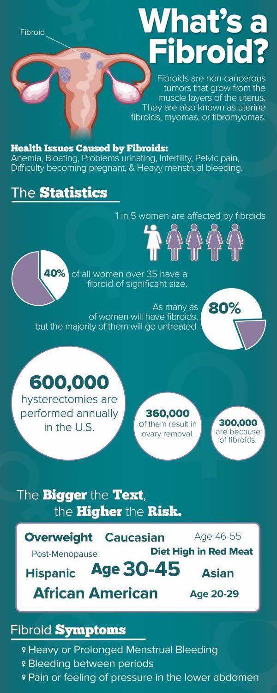 Uterine fibroids infographic
