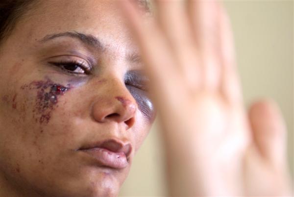 agredida pelo marido