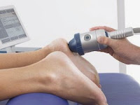 Extracorporeal Shockwave Therapy