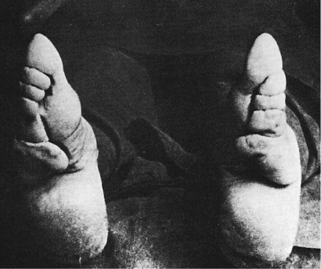 Bound To Be Beautiful 30 Rare And Scary Vintage Photos Of