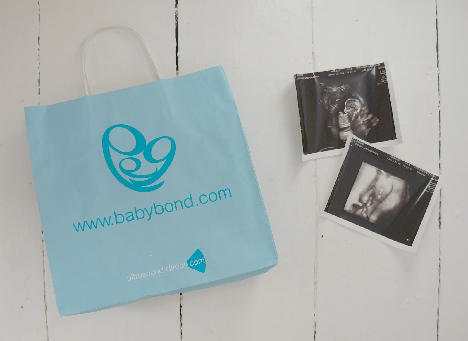 Our Babybond Gender Scan Experience | Review