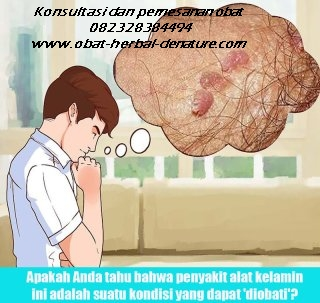 obat kutil kelamin,tanda kutil kelamin,gejala kutil kelamin,ciri ciri kutil kelamin,muncul kutil di sekitar kelamin,obat kutil tanpa operasi,cara menghilagkan kutil kelamin tanpa operasi