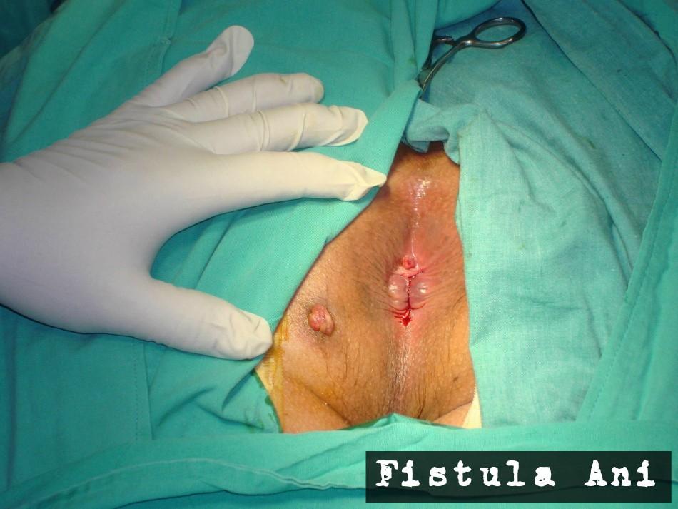 Obat Fistula Ani Di Apotik Kimia Farma