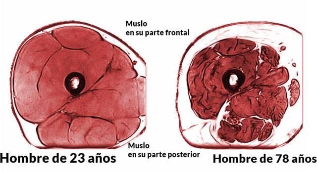 Pérdida de masa muscular vista en imágenes de resonancia magnética