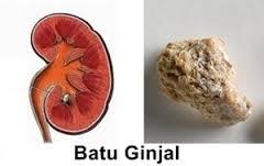 Nama obat kencing batu Di Apotik