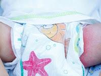Obat Ruam Popok Bayi Alami Berlegalitas dan Aman