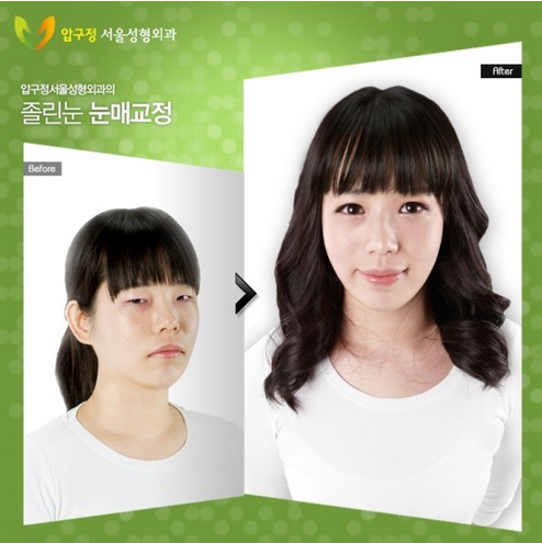 Before and After Cosmetic surgery Photos