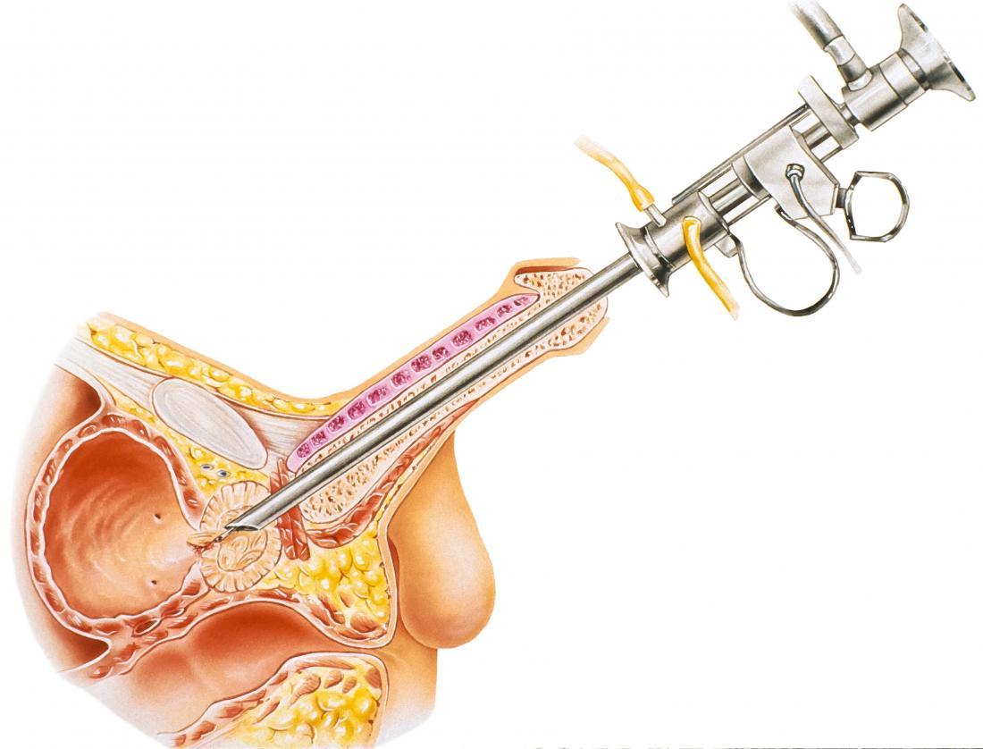 la cirugía de próstata requiere anestesia general